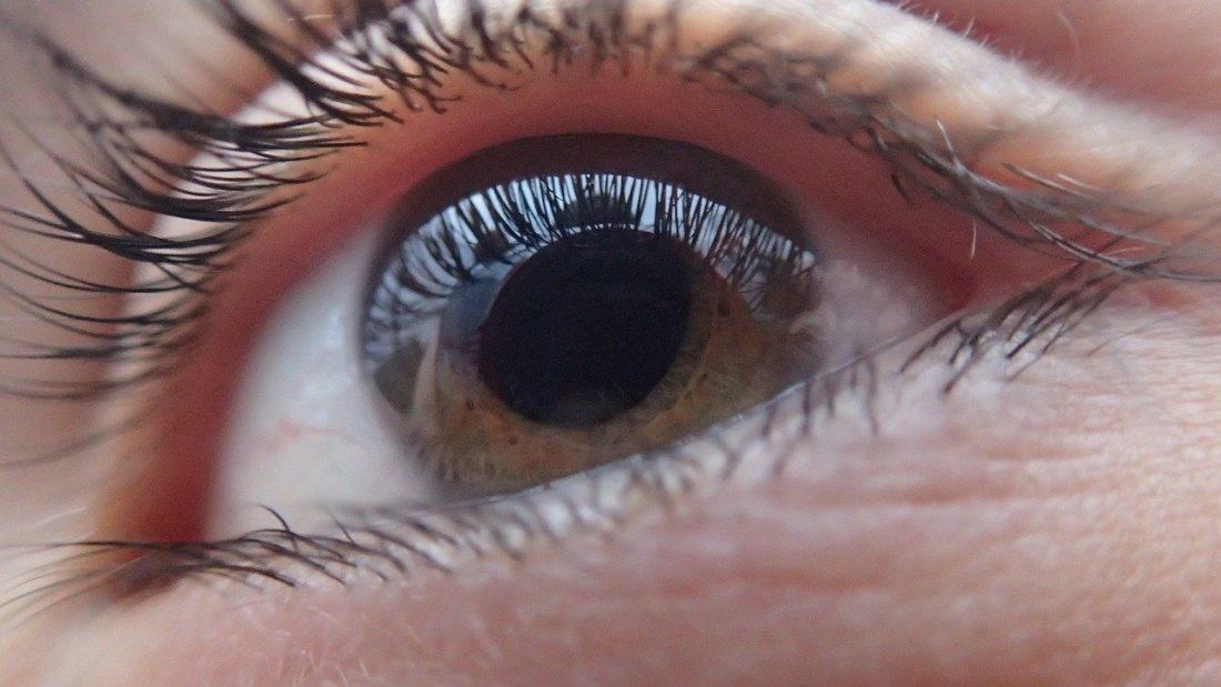 Сухо око